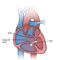 Heart with Atrioventricular Canal