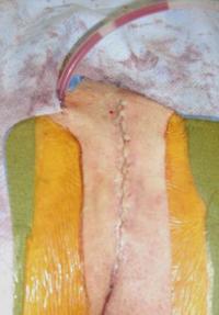 Pilonidal Cyst   Tailbone Cyst   Lurie Children's