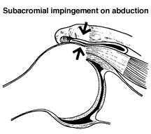 Subacromial Impingement on Abudction